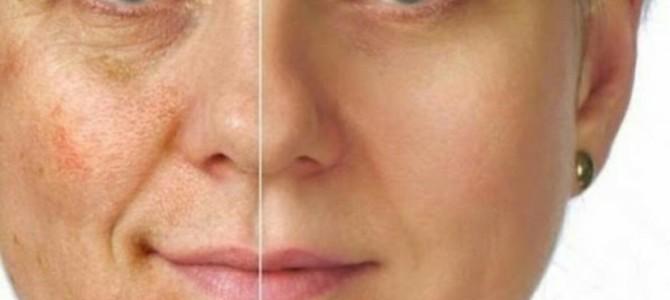 Как вывести пигментные пятна на лице